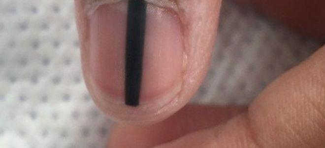 Черные полосы, тёмные пятна на ногтях: причины, лечение