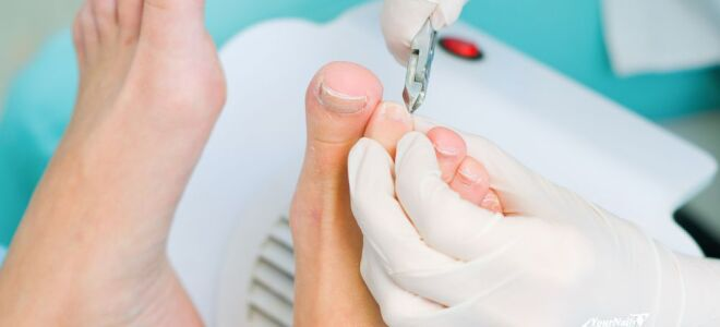 Современные методы лечения вросшего ногтя пластинами ониклип, лазером, радиоволнами