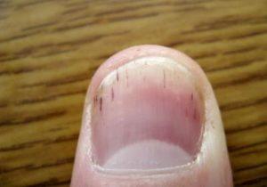 Мелкие полоски на ногтях